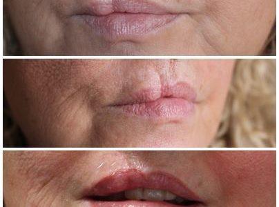 Cicatrices en labios