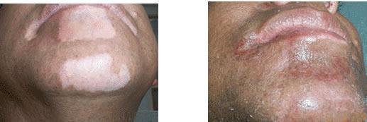 Tratamientos Vitiligo
