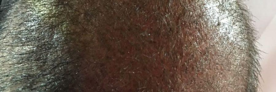 Tricopigmentación Capilar